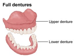 full and partial dentures.jpg